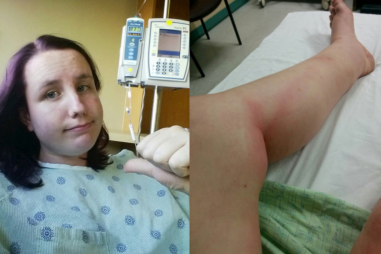 Split image of Kim at the hospital and her swollen leg